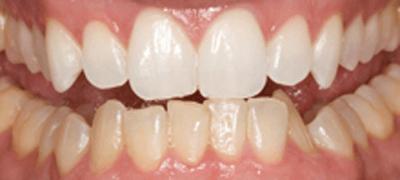 上顎前歯のみ12日間使用