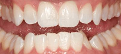 下顎前歯を6日間使用